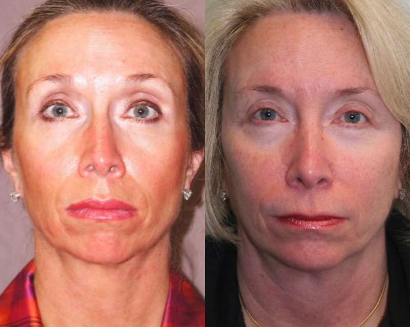 60-year-old, endobrow, upper lower eyelids, facelift, chin augmentation CSC,  12 years after facelift, chin, 14 years after endobrow and upper lower eyelids. Front view.
