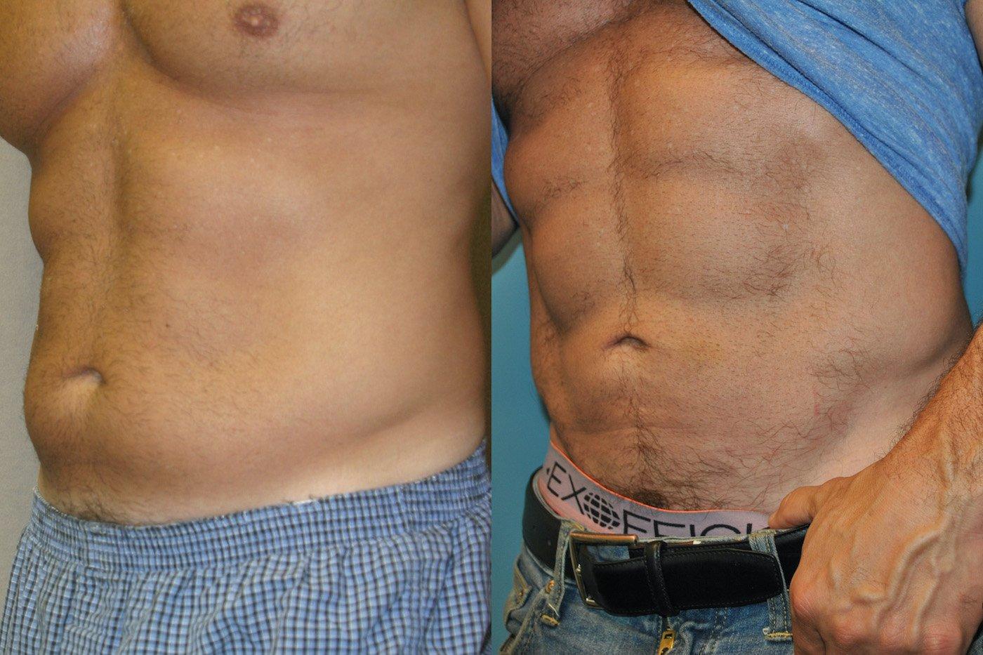 Abdominal etching liposuction abdomen