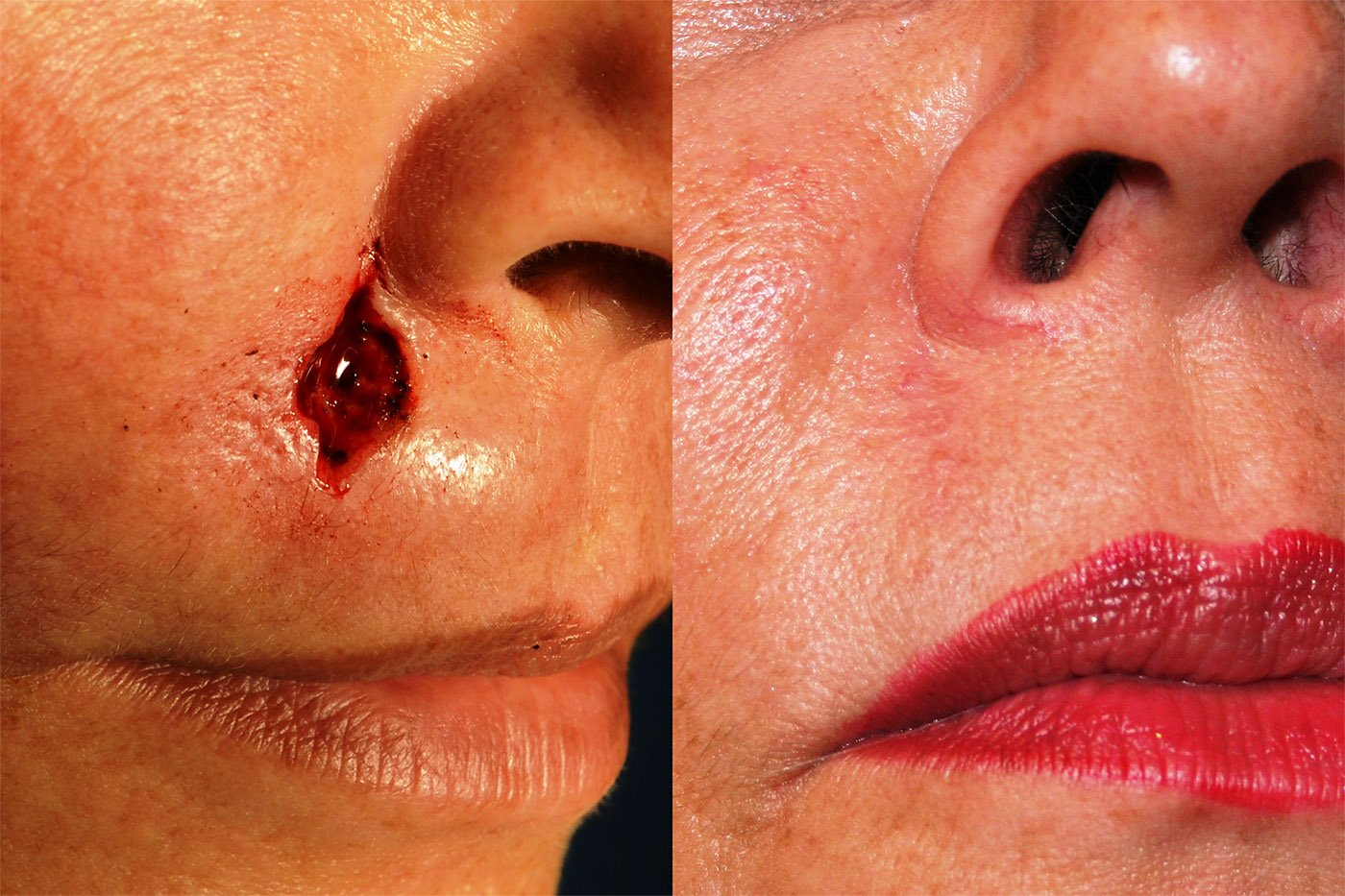 Mohs excision of skin cancer repair 8 weeks after surgery