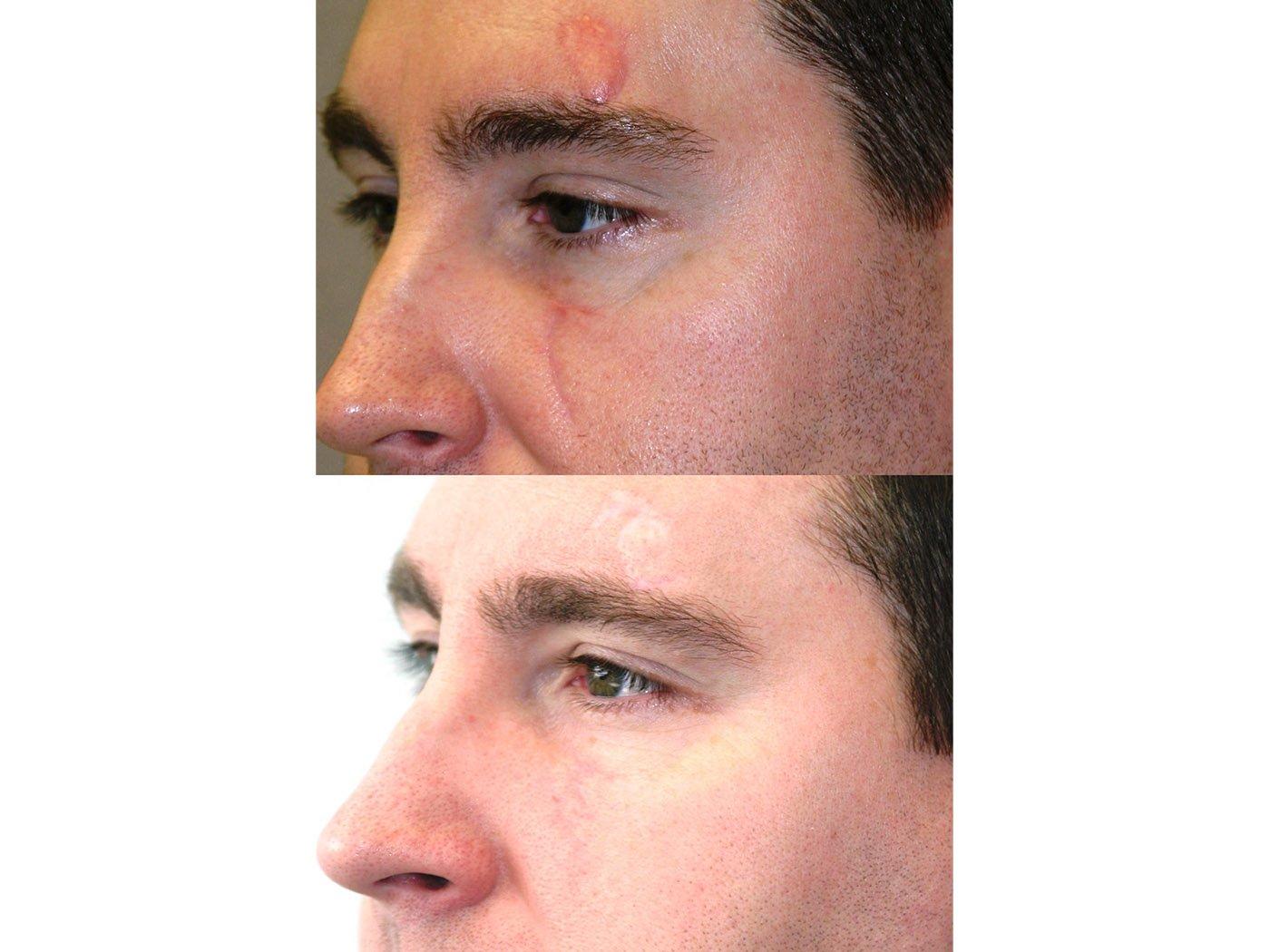 Z-plasty scar revision 6 months after surgery, oblique view