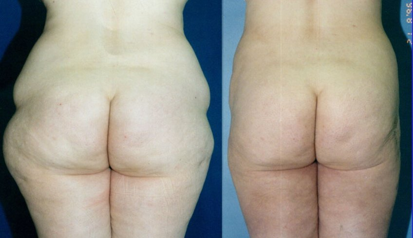 Liposuction hips, outer thighs