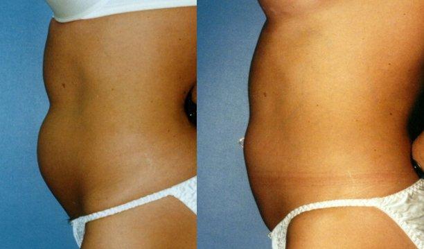 Liposuction tummy