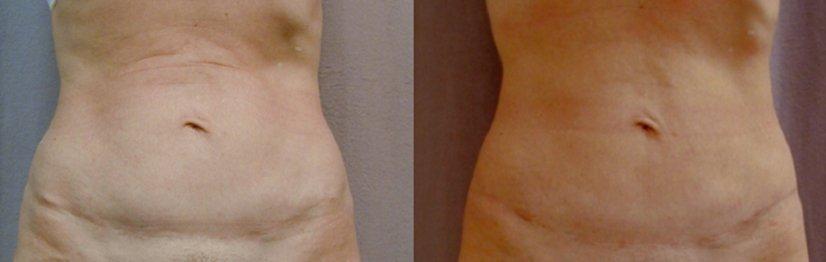 Liposuction tummy after abdominoplasty