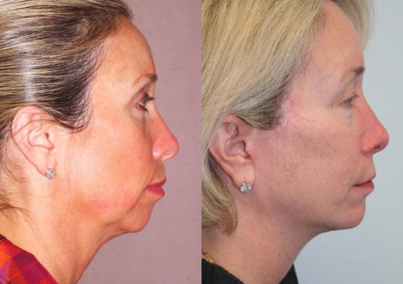 60-year-old, endobrow, upper lower eyelids, facelift, chin augmentation CSC,  12 years after facelift, chin, 14 years after endobrow and upper lower eyelids. Side view.