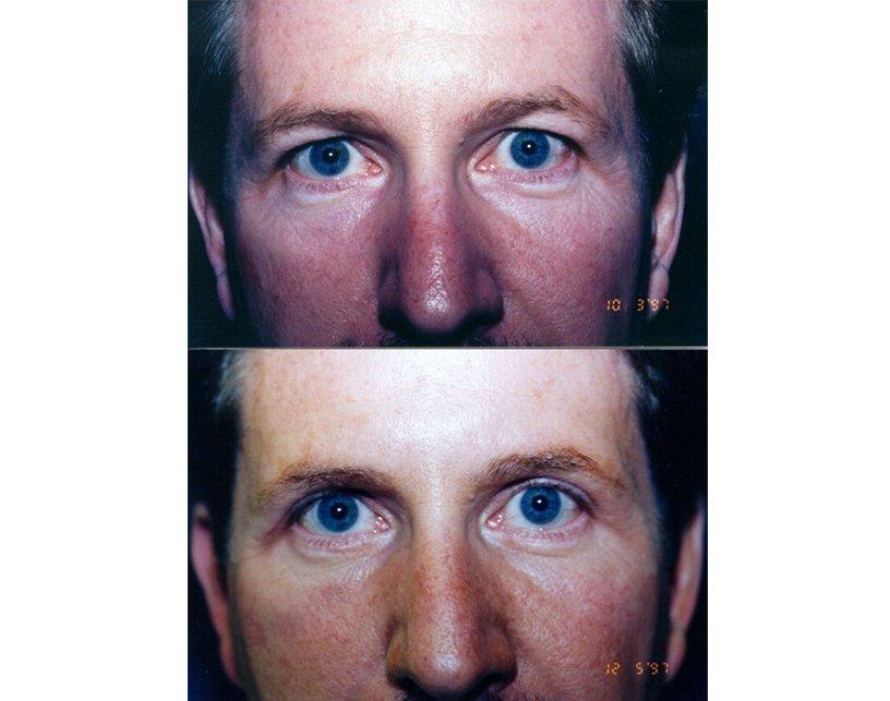 2.Blepharoplasty
