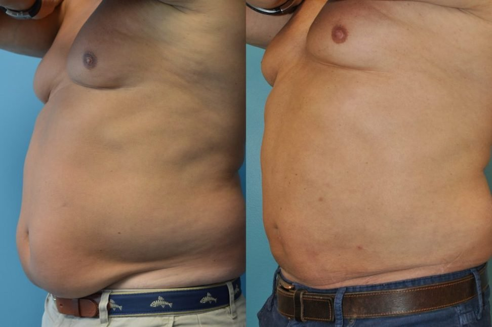 Male BodyTite 6 weeks after surgery oblique view