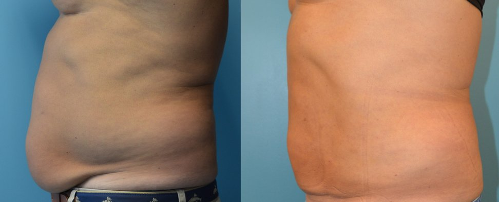 Male BodyTite and Liposuction 6 weeks after surgery left side view