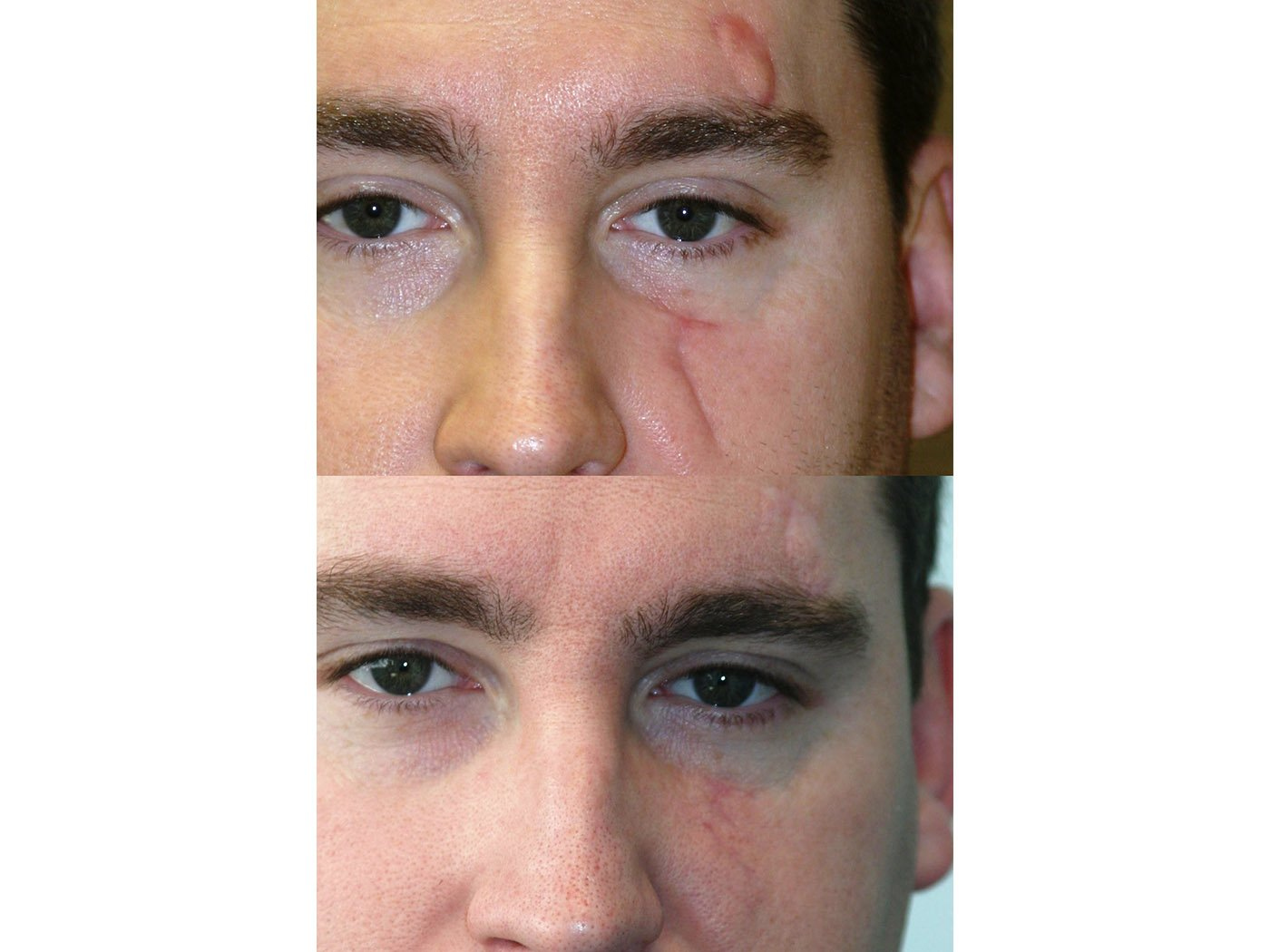 Z-plasty scar revision 6 months after surgery front view