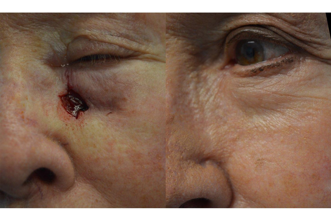 Skin cancer closure with local skin flap