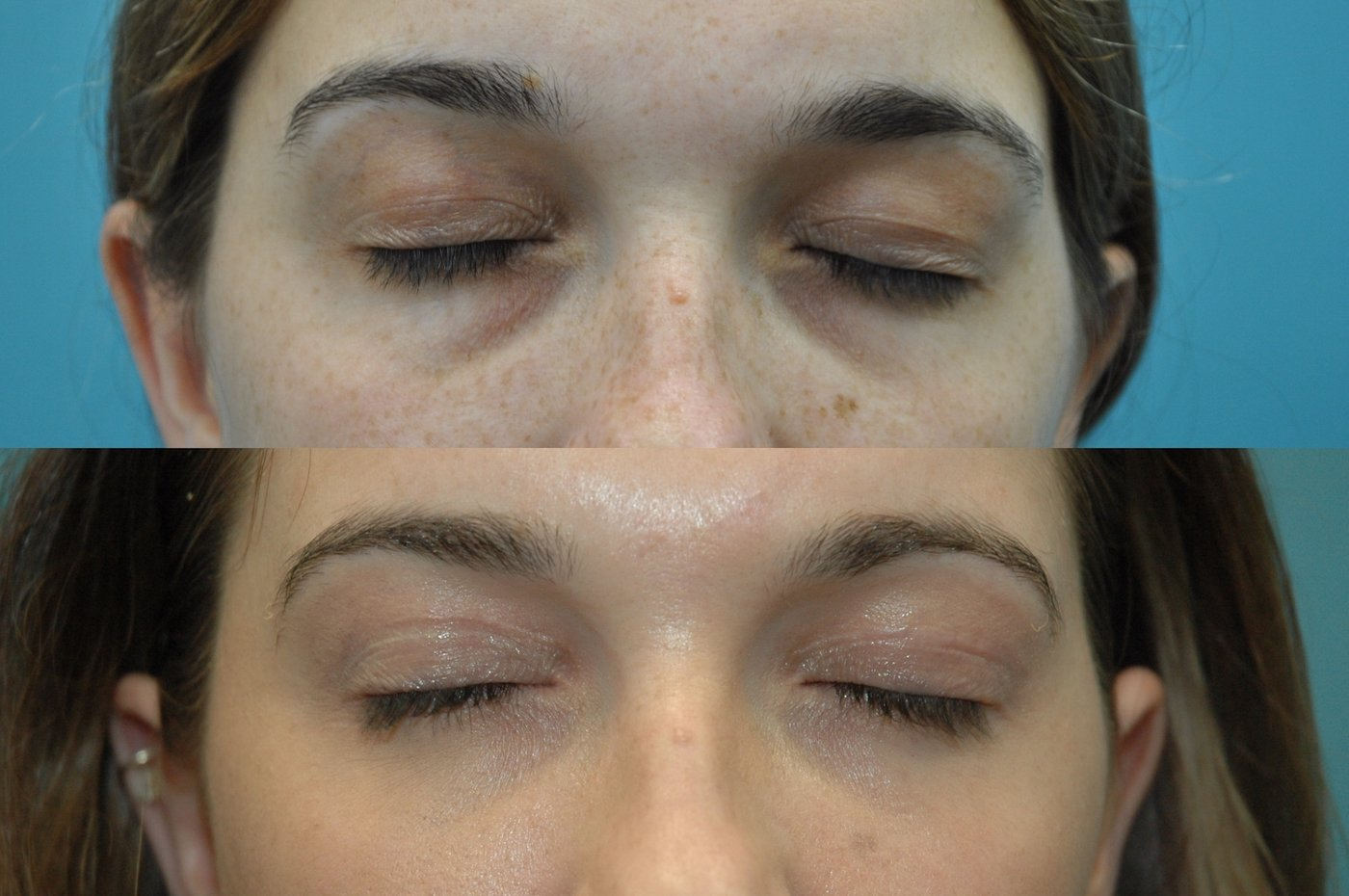 27 year old after upper and lower blepharoplasty with transposition of medial and middle fat pads. Eyes closed showing upper eyelid scar.