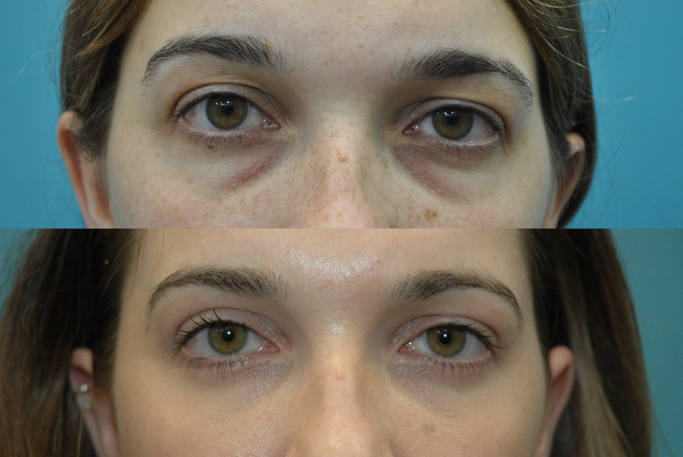 27 year old after upper and lower blepharoplasty with transposition of medial and middle fat pads. external approach. forward gaze.