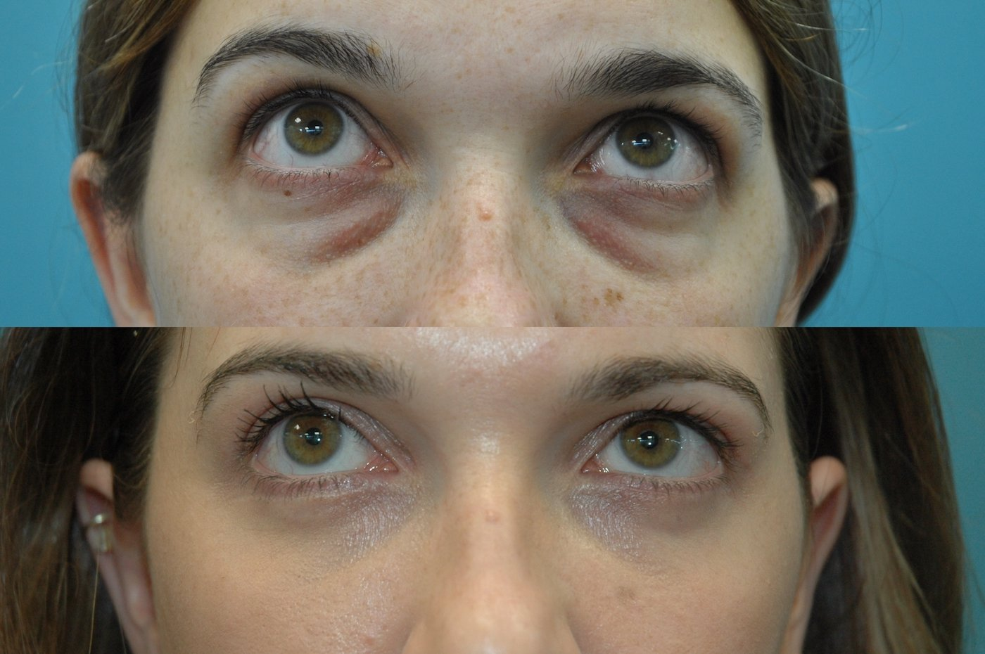27 year old after upper and lower blepharoplasty with transposition of medial and middle fat pads.. upwards gaze