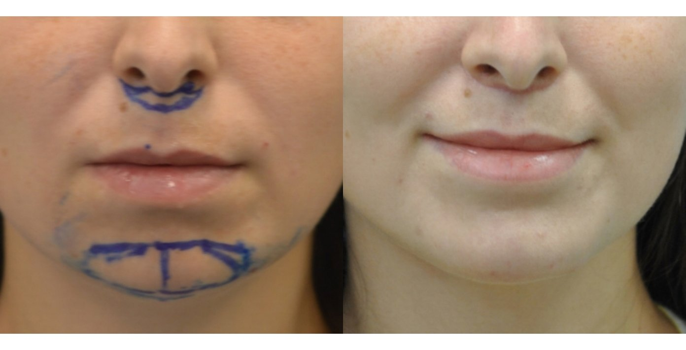 29-year-old upper lip shortening with chin implant, 3 months after surgery front view