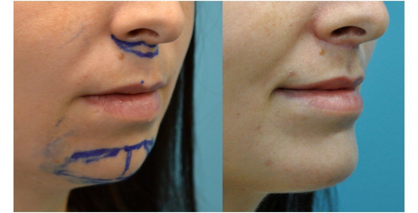 29-year-old upper lip shortening with chin implant, 3 months after surgery oblique view