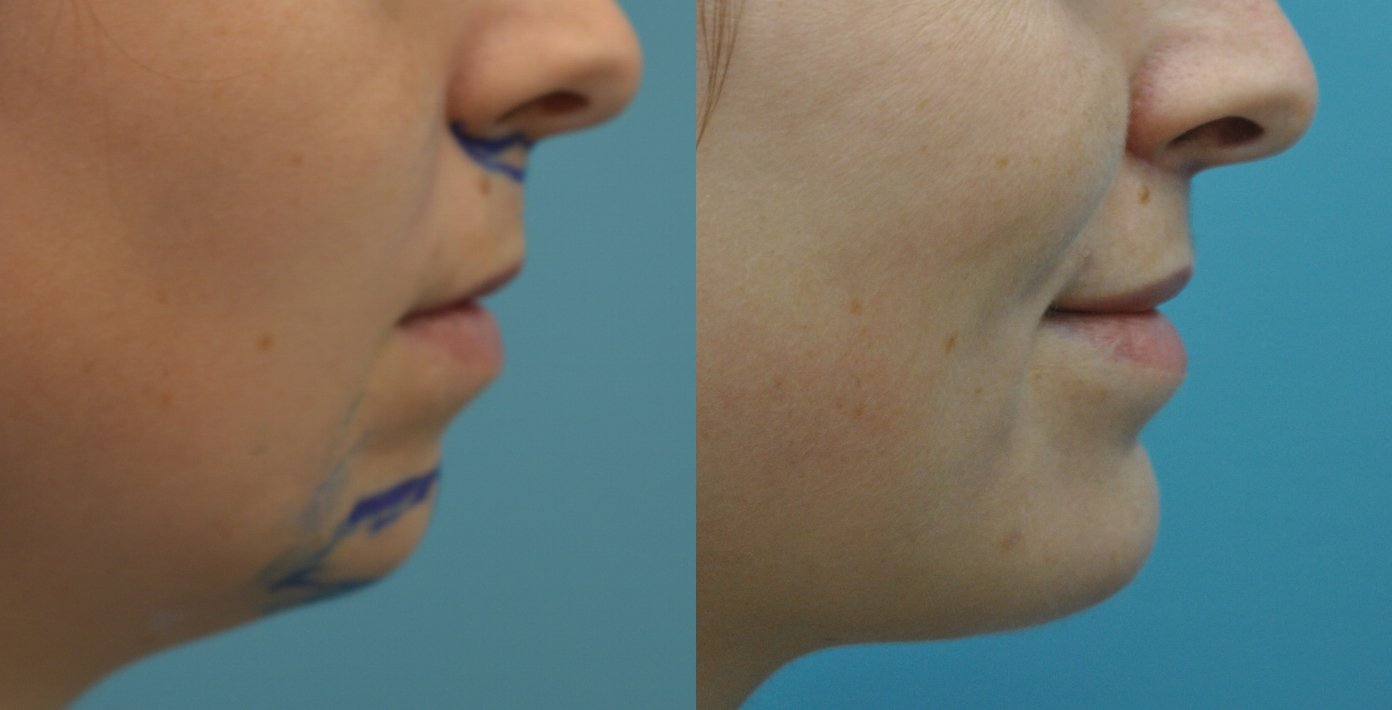 29-year-old upper lip shortening with chin implant, 3 months after surgery side view