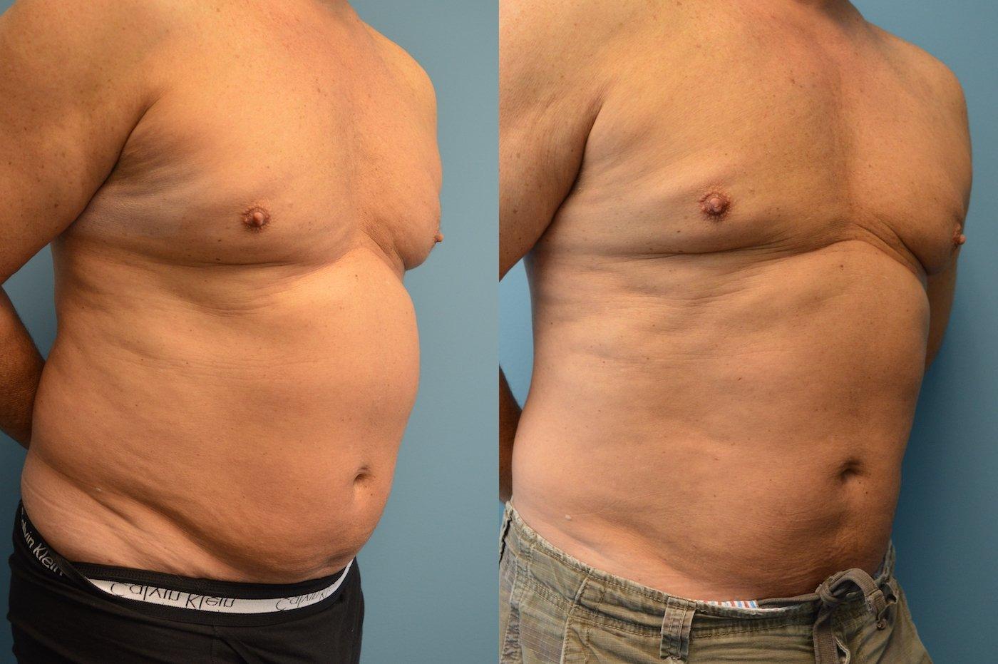 Male Bodytite and liposuction of abdomen right oblique view