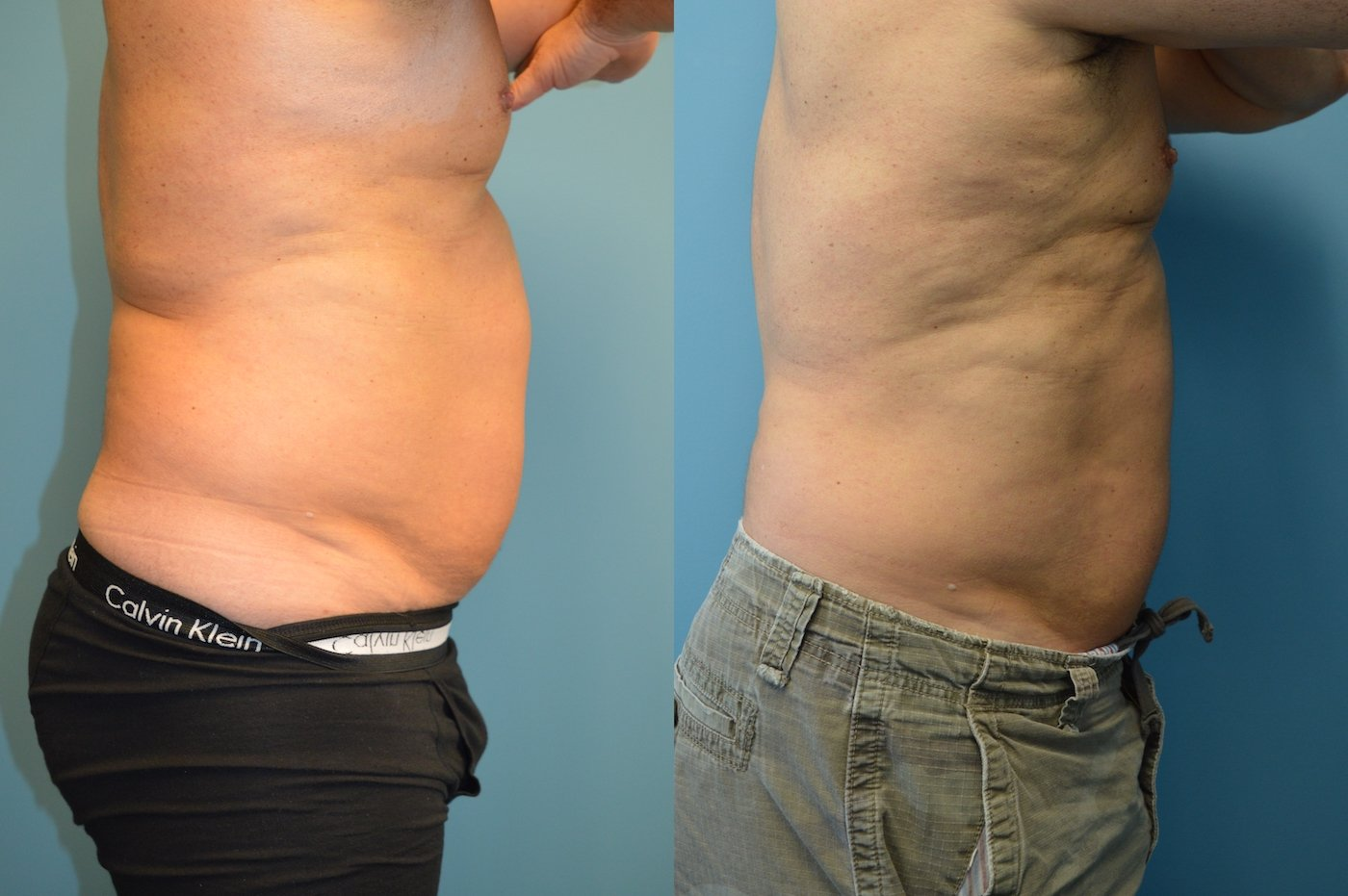 Male Bodytite and liposuction of abdomen side view