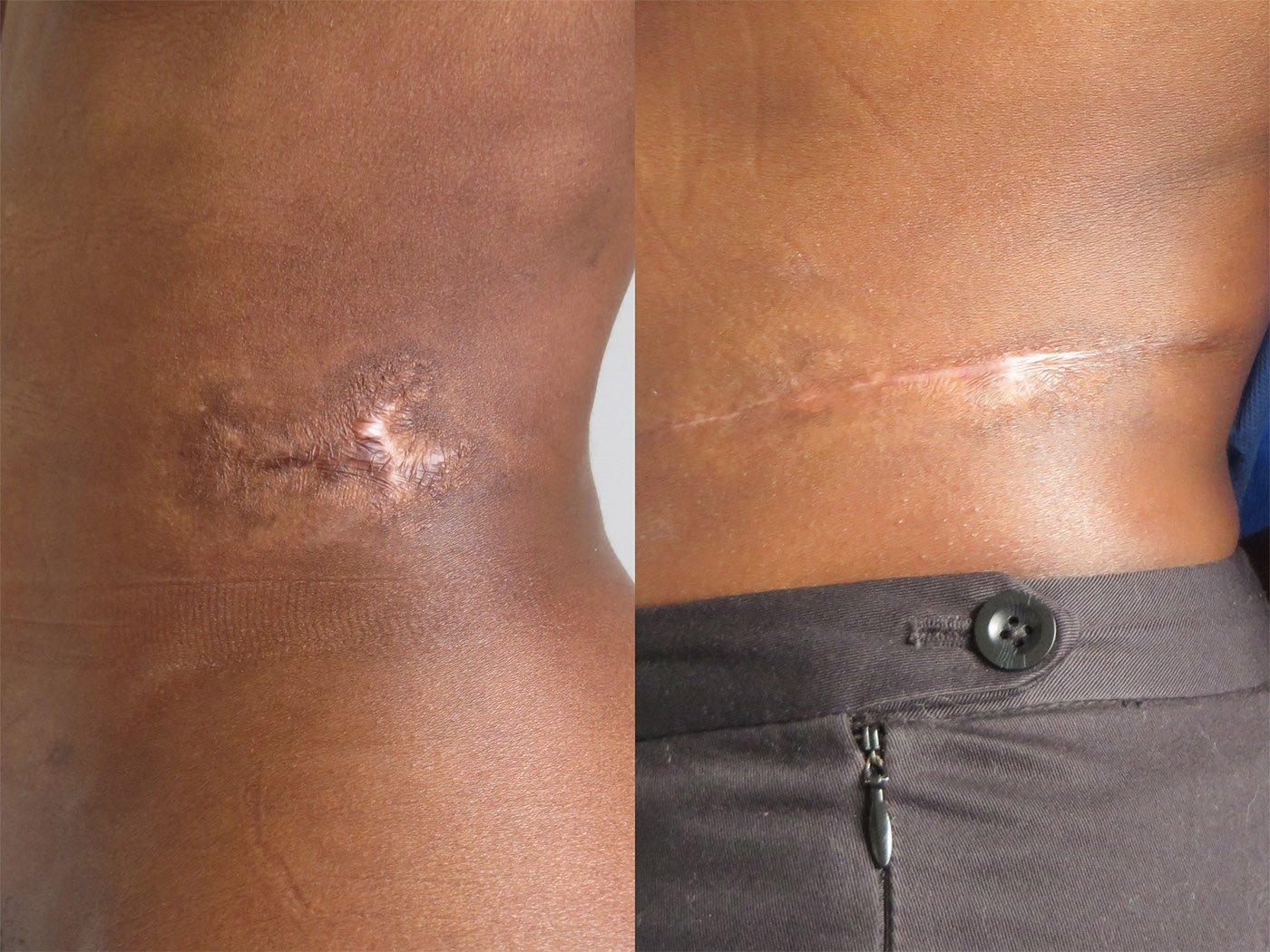 Excision of burn scar