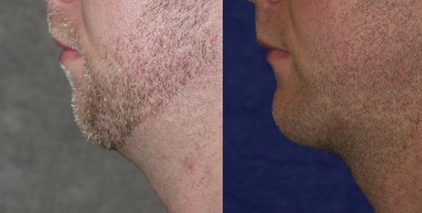 30-year-old Chin Augmentation and Rhinoplasty , 2 years after surgery male side view