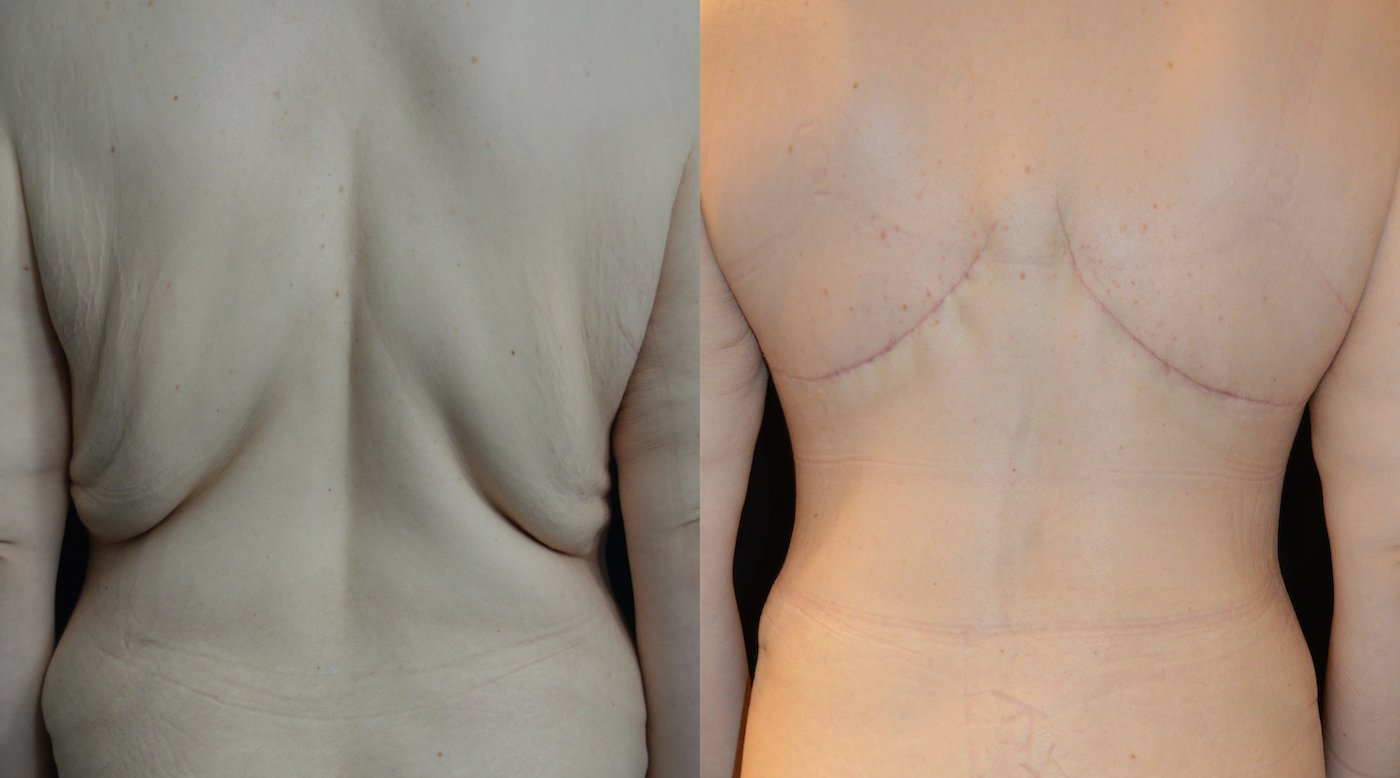 34-year-old female after upper body lift and breast auto-augmentation 1 month
