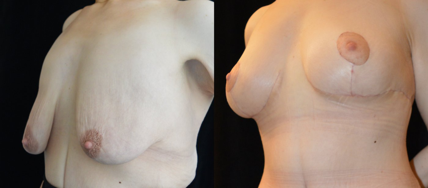 34-year-old 1 month after upper body lift and breast lift, breast auto-augmentation, left oblique view