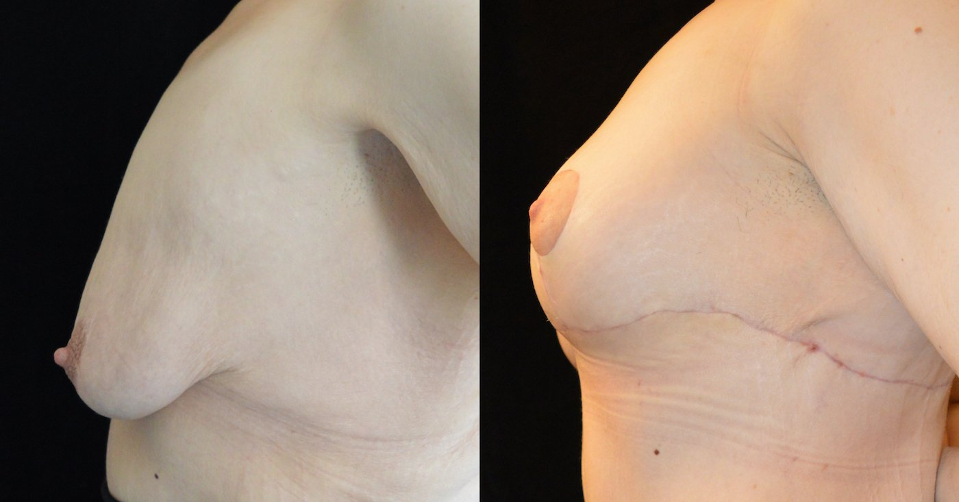 34-year-old 1 month after upper body lift and breast lift, breast auto-augmentation, left side view
