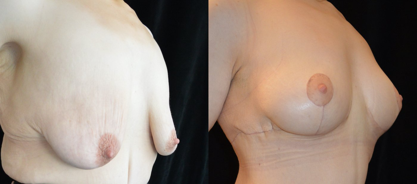 34-year-old 1 month after upper body lift and breast lift, breast auto-augmentation, right oblique view