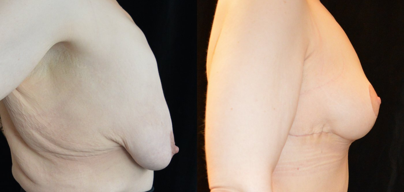 34-year-old 1 month after upper body lift and breast lift, breast auto-augmentation, right side view