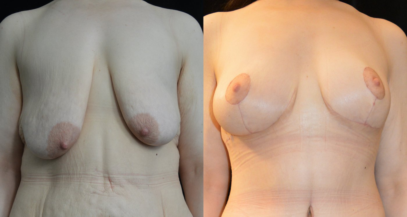 34-year-old 3 months after extended abdominoplasty and 1 month after breast lift, breast auto-augmentation, front view breasts