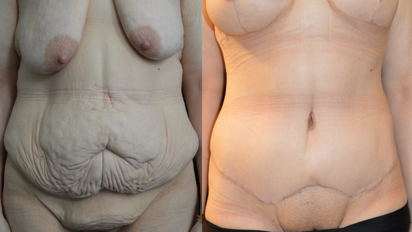 34-year-old 3 months after extended abdominoplasty and 1 month after breast lift, breast auto-augmentation, front view