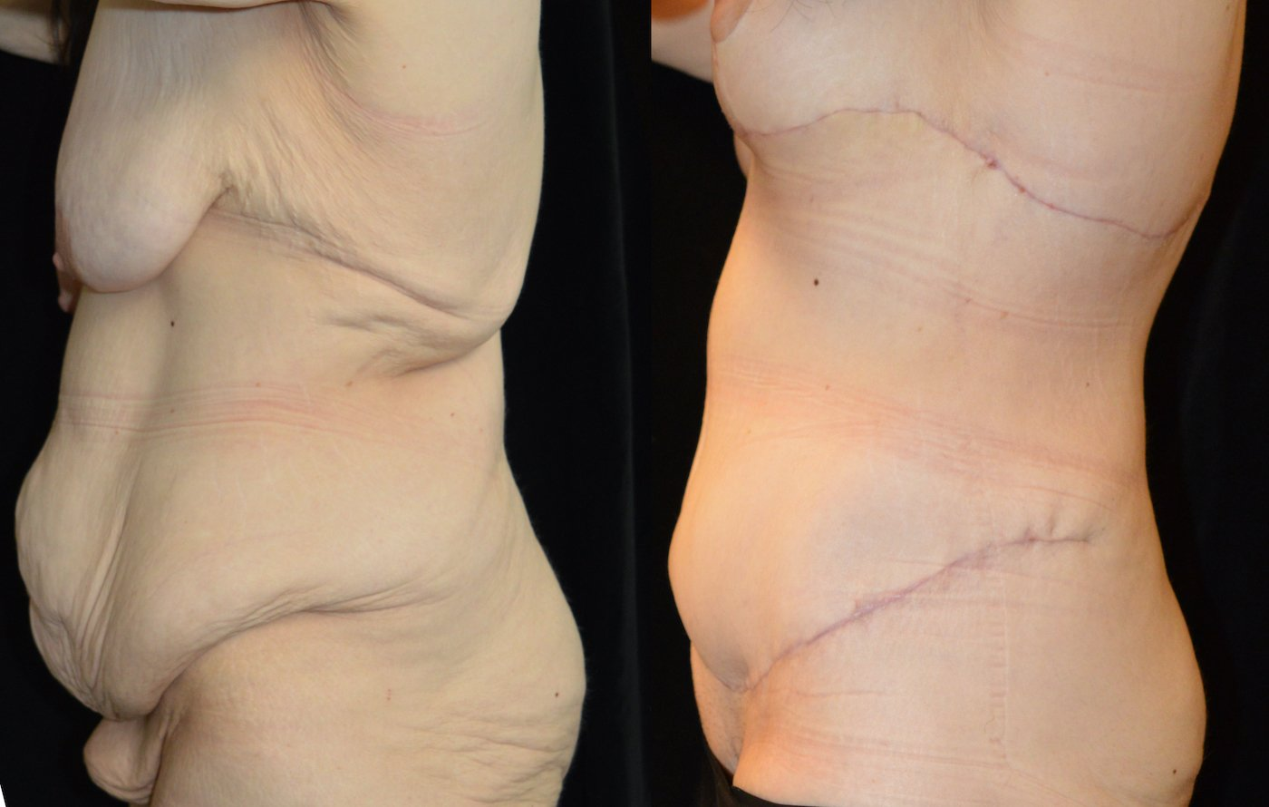 34-year-old 3 months after extended abdominoplasty and 1 month after breast lift, breast auto-augmentation, left side view