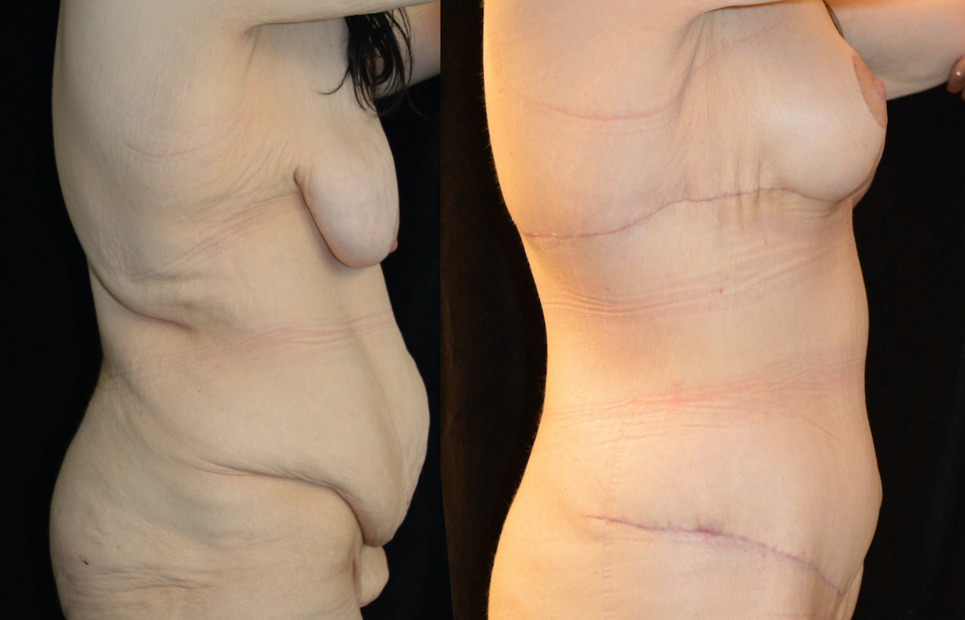 34-year-old 3 months after extended abdominoplasty and 1 month after breast lift, breast auto-augmentation, right side view