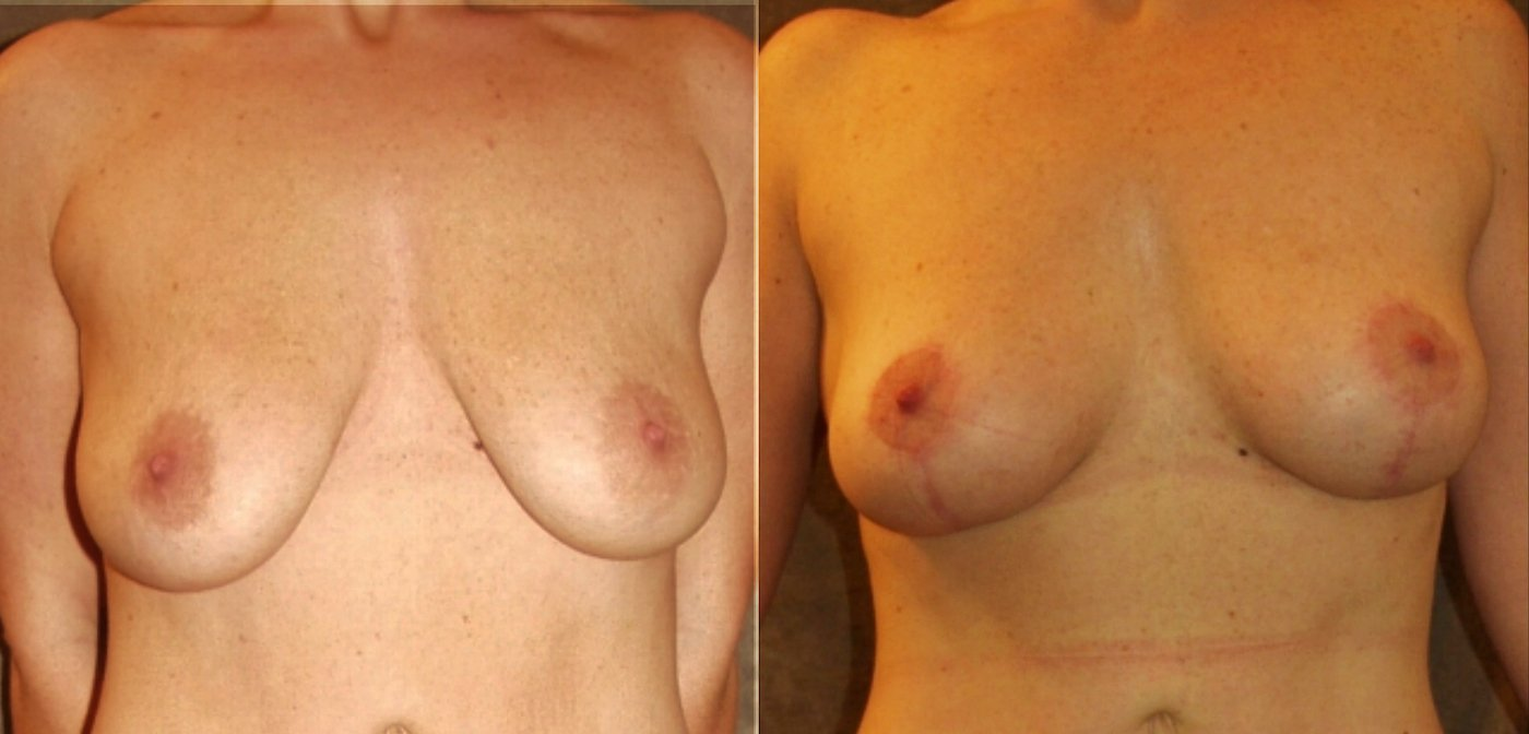 35-year-old 8 months after breast auto-augmentation, front view