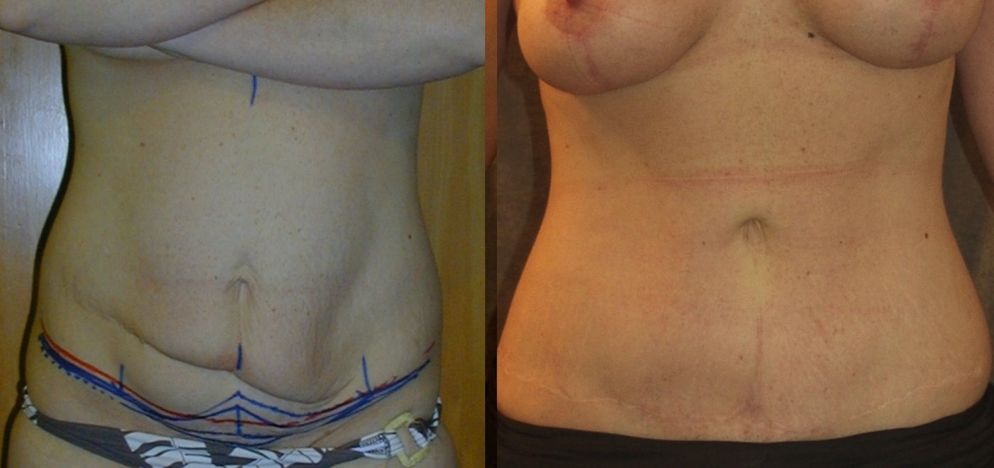 35-year-old abdominoplasty with prior surgery scars 3 years after surgery, front view