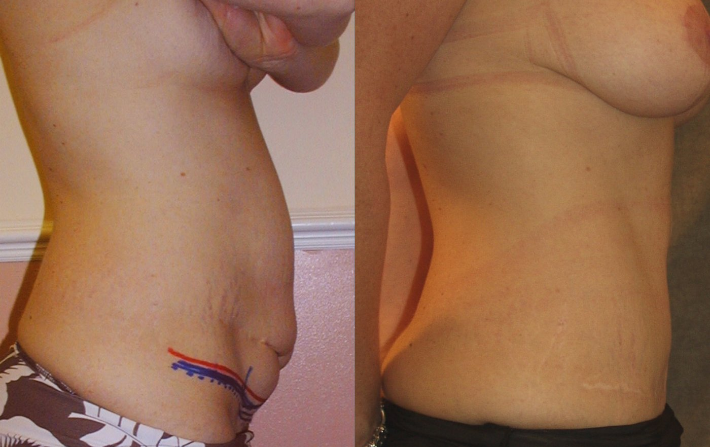 35-year-old abdominoplasty with prior surgery scars 3 years after surgery, right side view