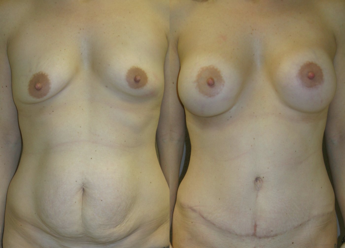 36-year-old Mommy Makeover, Breast Augmentation and Tummy Tuck 6 months after surgery, front view