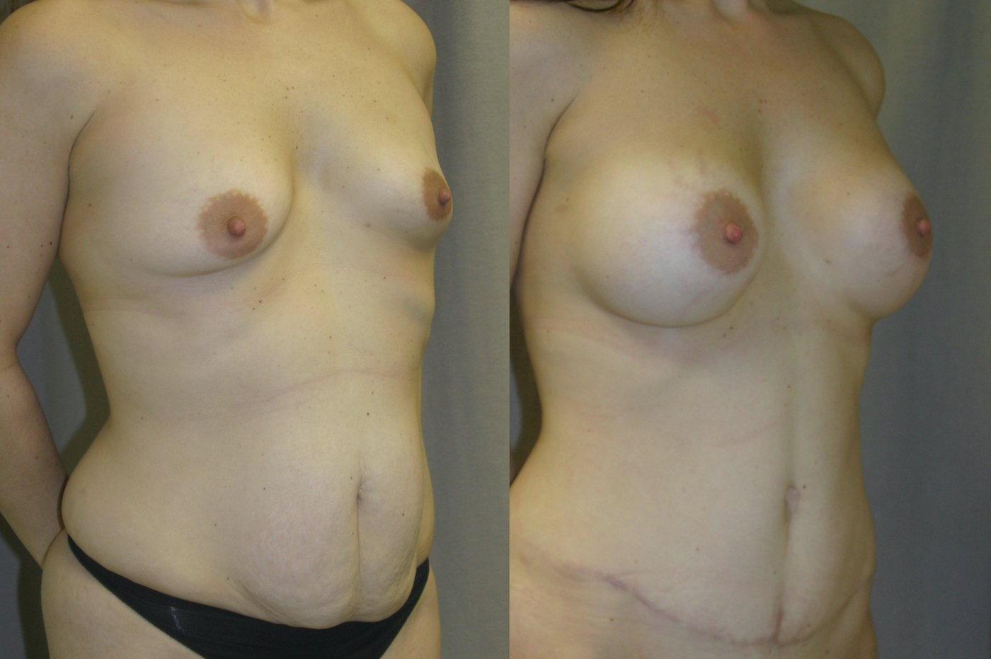 36-year-old Mommy Makeover, Breast Augmentation and Tummy Tuck 6 months after surgery, oblique view