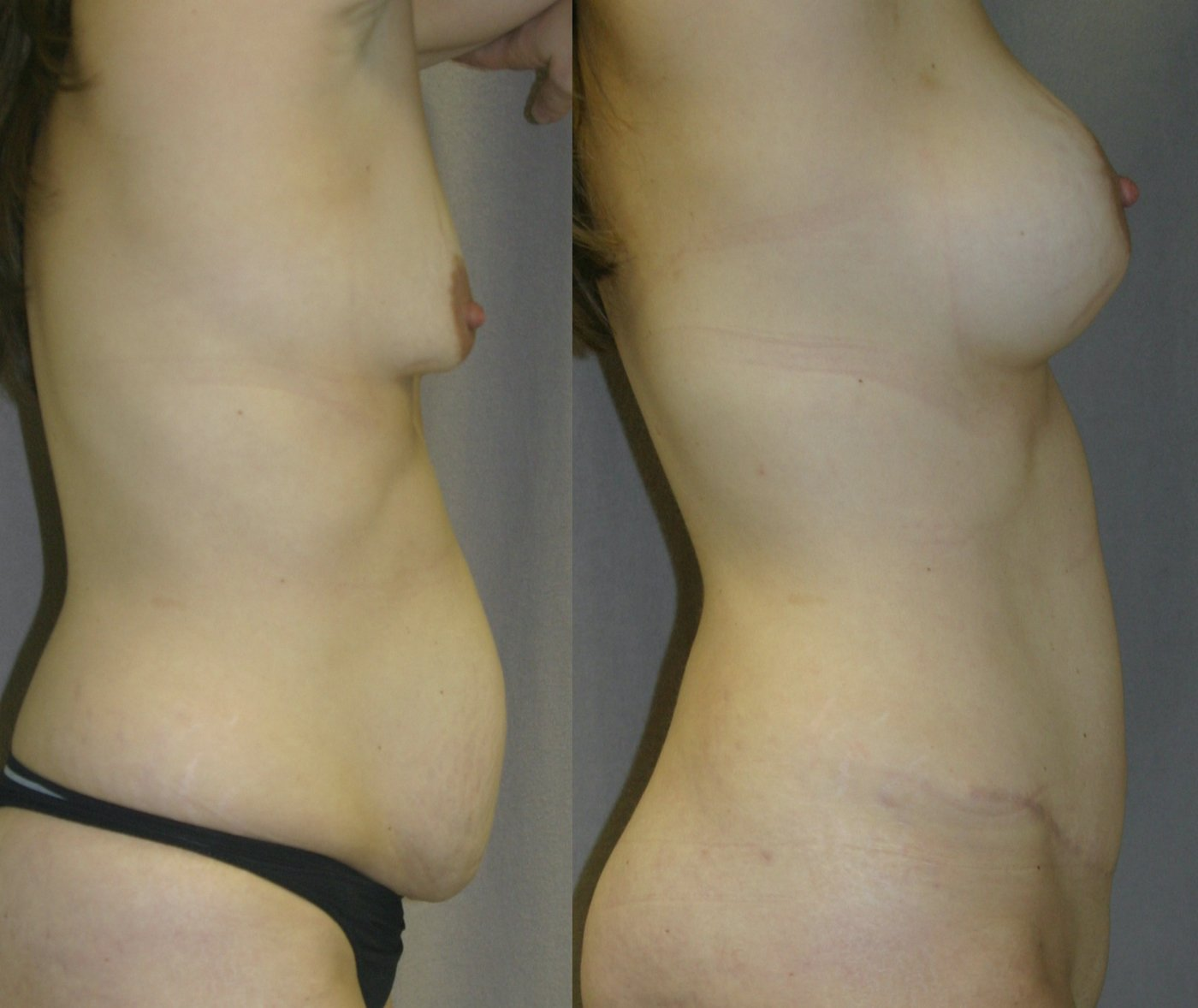 36-year-old Mommy Makeover, Breast Augmentation and Tummy Tuck 6 months after surgery, side view