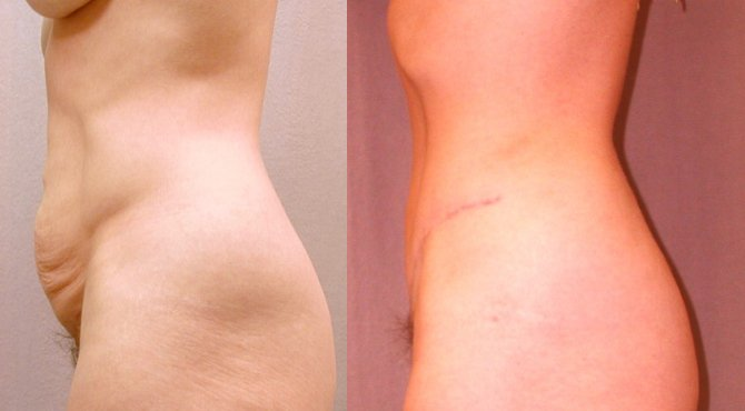 36-year-old abdominoplasty 6 months after surgery, side view
