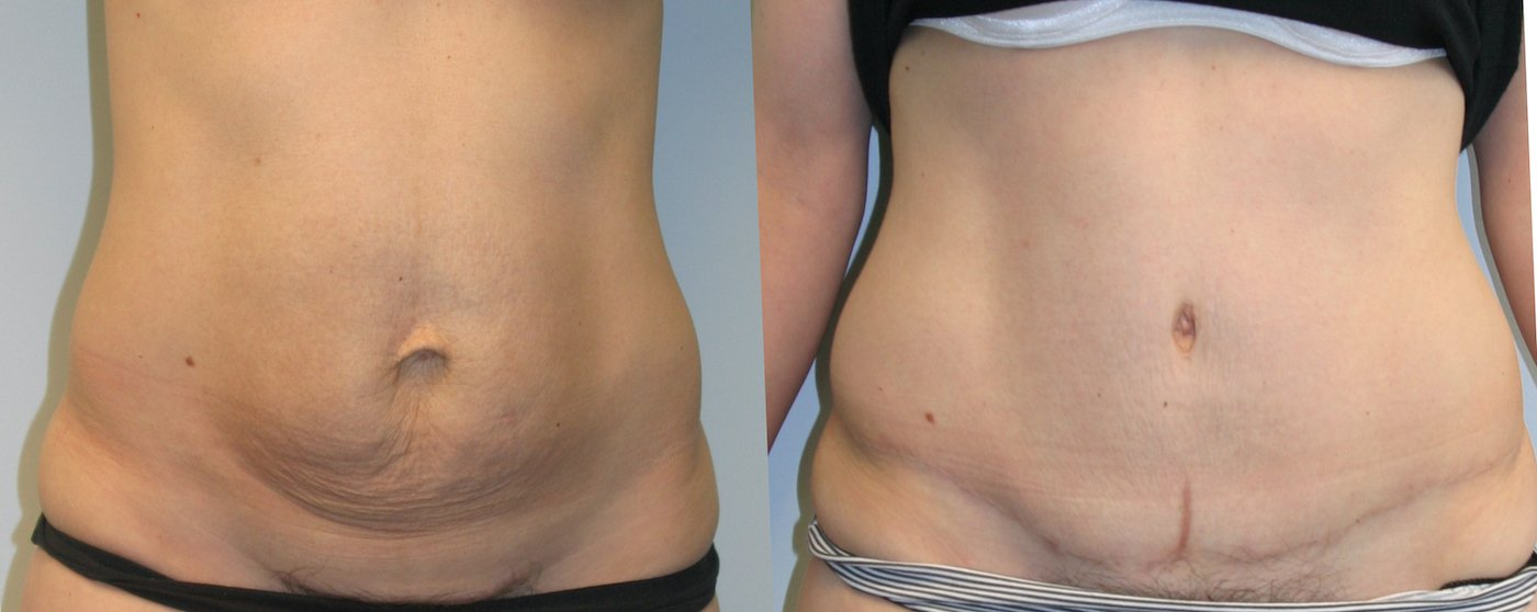 38-year-old 1 year after abdominoplasty with inverted T-shaped scar, 360 gm removal, front view