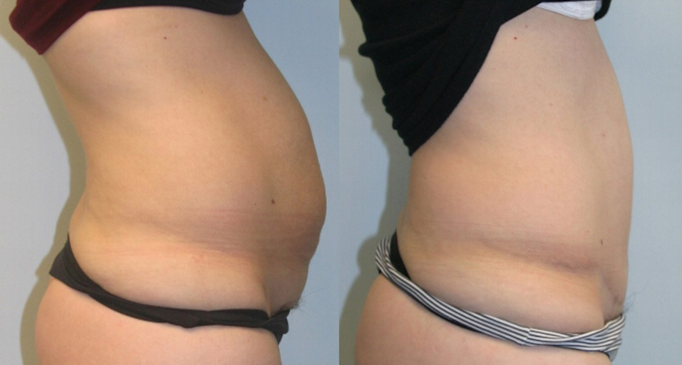 38-year-old 1 year after abdominoplasty with inverted T-shaped scar, 360 gm removal, side view