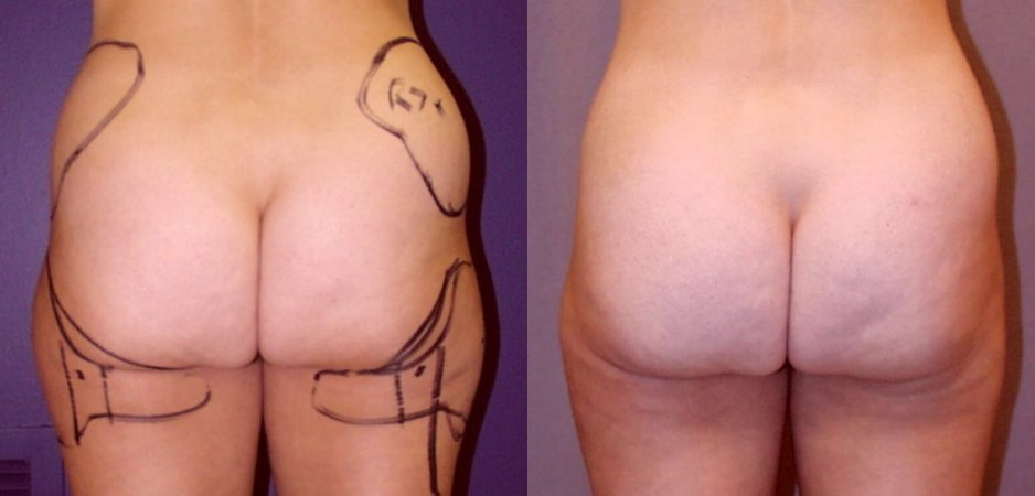 38-year-old 1 year after liposuction hips, inner _ outer thighs, back view