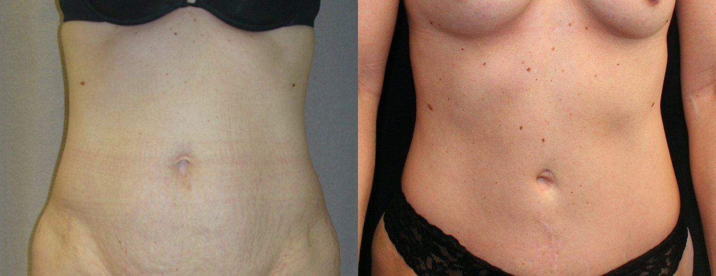 38-year-old 5 years after abdominoplasty with inverted T-shaped scar, 510 gm. removal, front view