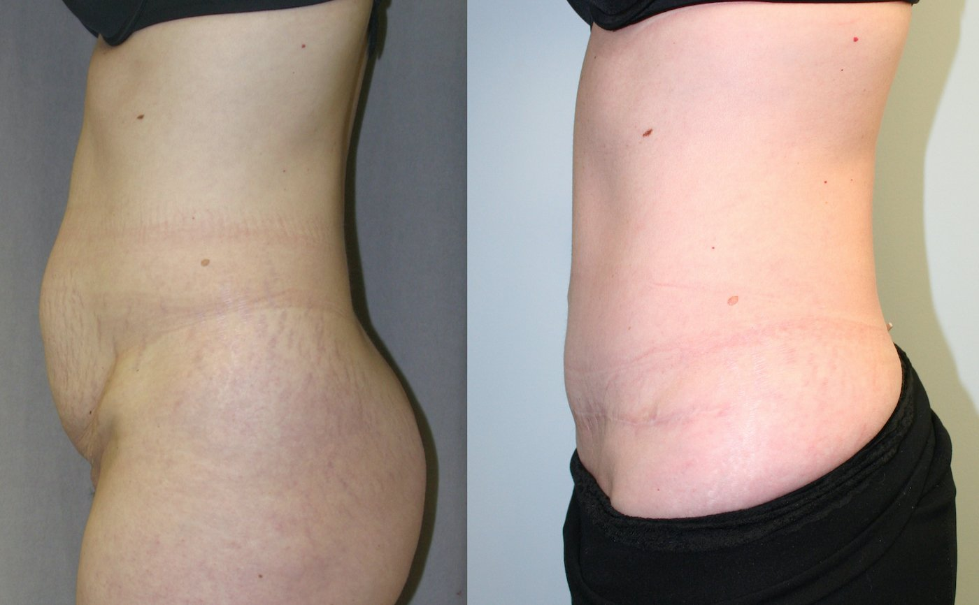 38-year-old 5 years after abdominoplasty with inverted T-shaped scar, 510 gm. removal, left side view