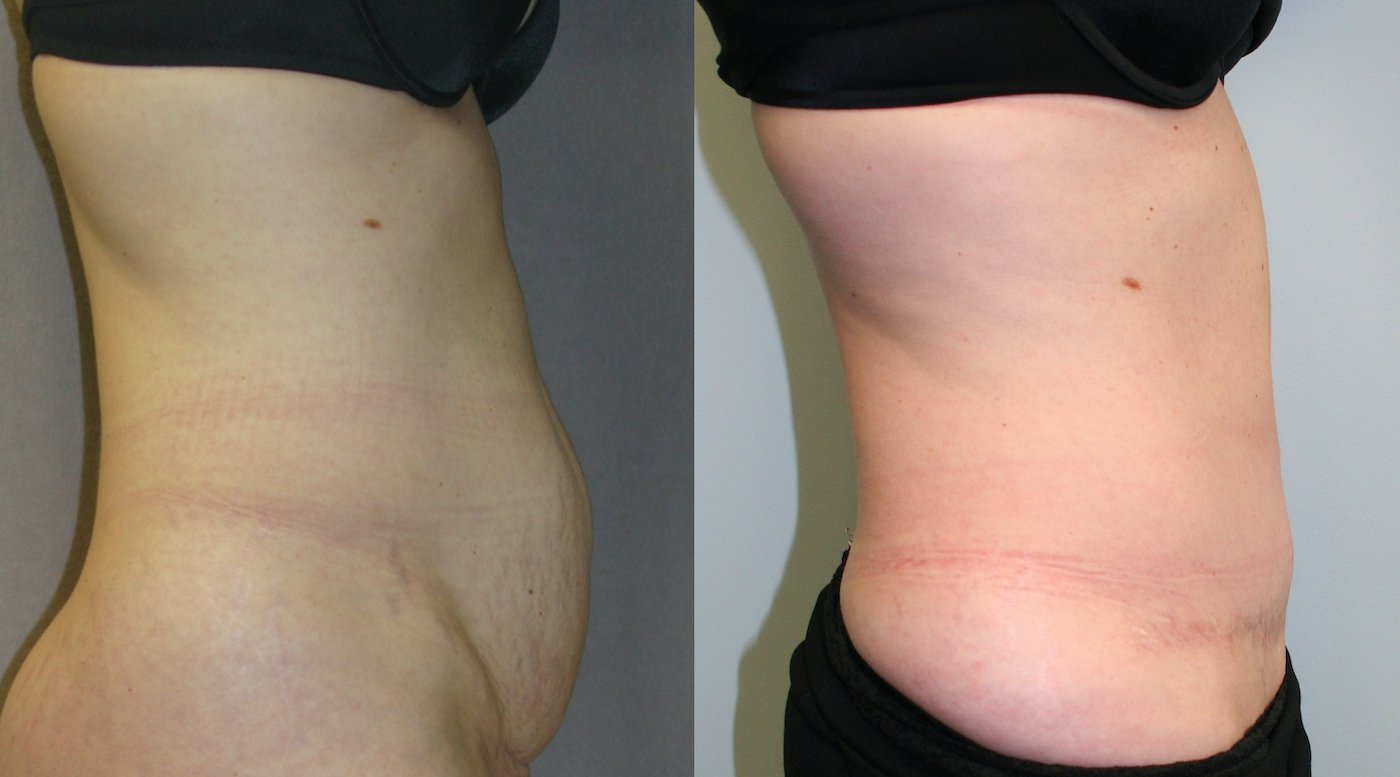 38-year-old 5 years after abdominoplasty with inverted T-shaped scar, 510 gm. removal, right side view