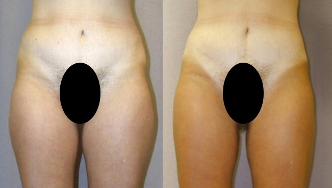 Liposuction hips, outer and inner thighs