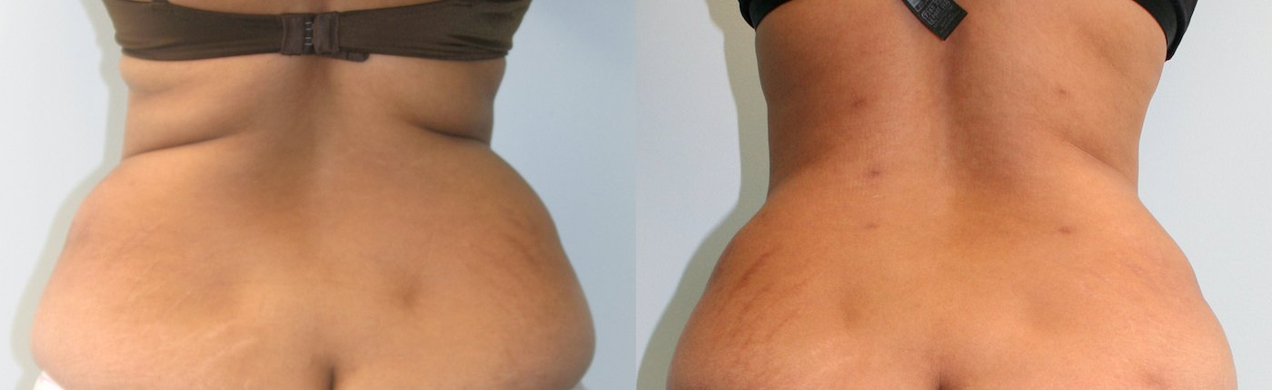 40-year-old 1 year after abdominoplasty and liposuction back and upper abdomen, back view