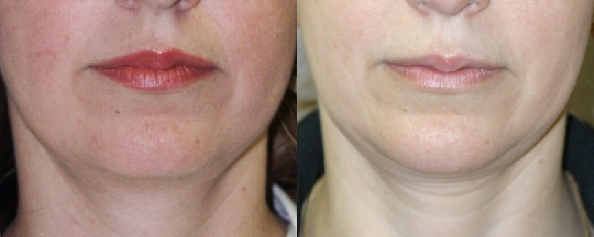 40-year-old, 2.5 years after chin implant, front view