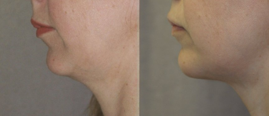 40-year-old, 2.5 years after chin implant, side view