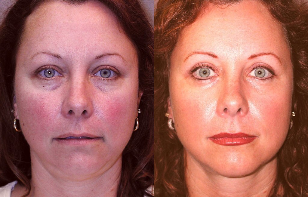 40-year-old 6 weeks after upper and lower blepharoplasty and liposuction submental